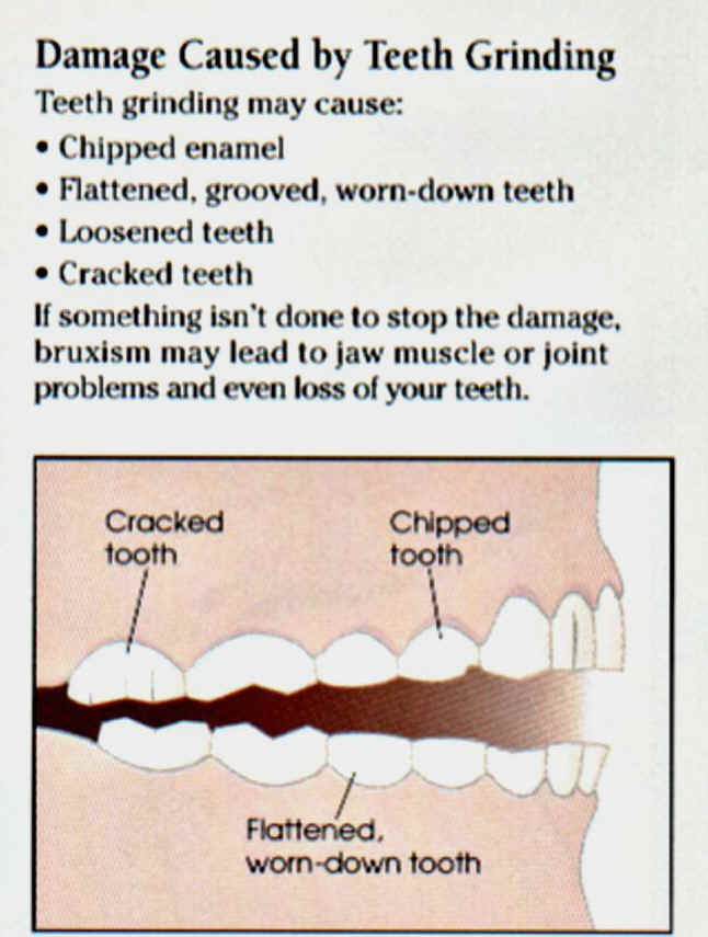 Natural Remedies For Teeth Grinding Its Not Just Stress The