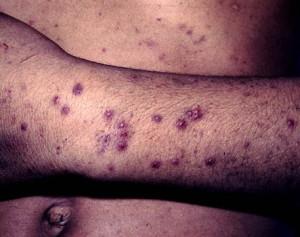 thrombocytopenic_purpura_idiopatic2